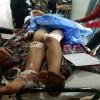 بالفيديو :قطع يد شاب من طرف شخصين وإهماله في المستشفى